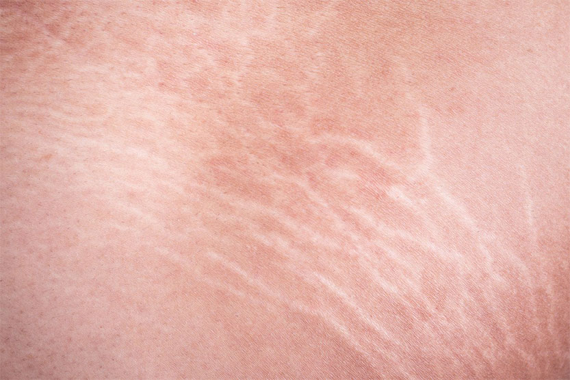 photo of stretch marks on skin