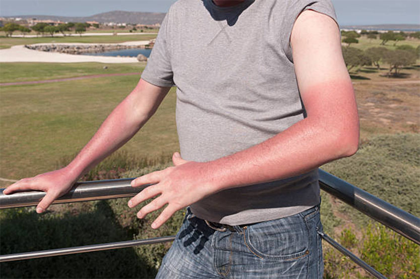 Photo of a man with tan lines