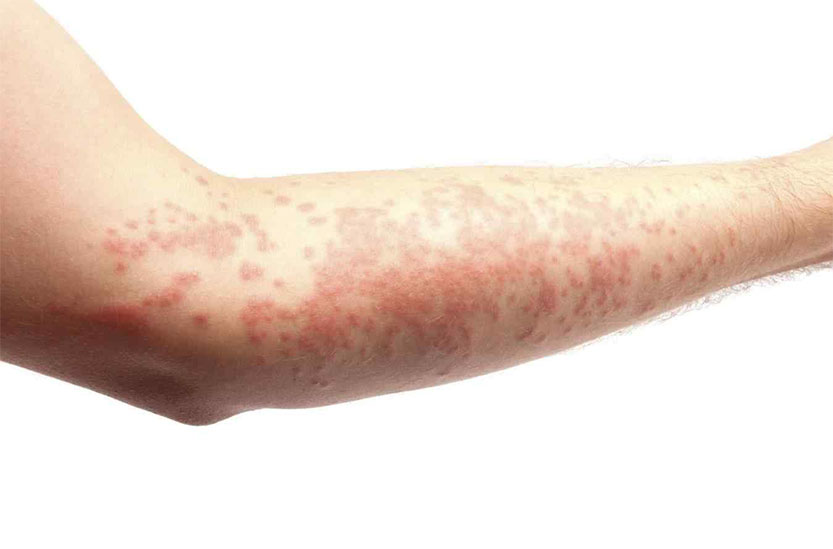 Photo of skin with hives or urticaria